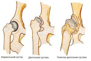 Как лечить больные суставы английскому бульдогу терафлексом сколько стоит мазь лошадиная сила для суставов
