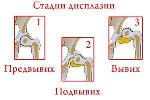 суставов кроме того йога способствует формированию особенного психофизиологического