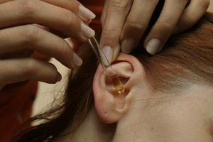 Народные способы лечения ушного клеща у человека
